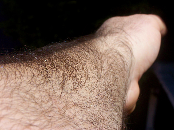 Tenho pêlo